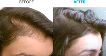 Theradome: Low Level Light Therapy for Hair Regeneration – Dr John Burns