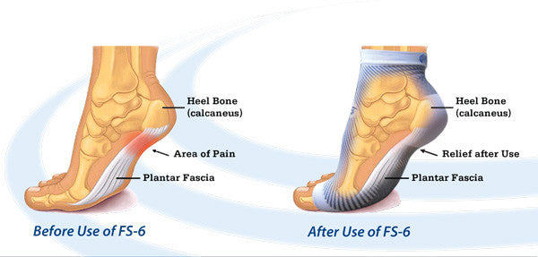 Before and after use of compression sleeve for plantar fasciitis