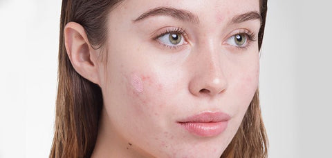 acne on girl