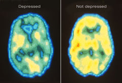 Regular brain, depressed person's brain