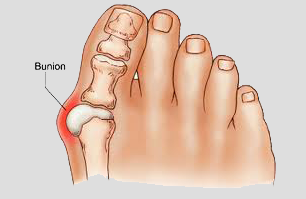 Safe and effective ways to deal with your Bunions at home