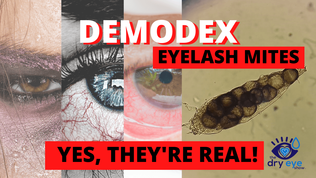 Demodex Eyelash Mites...Yes, They're Real!