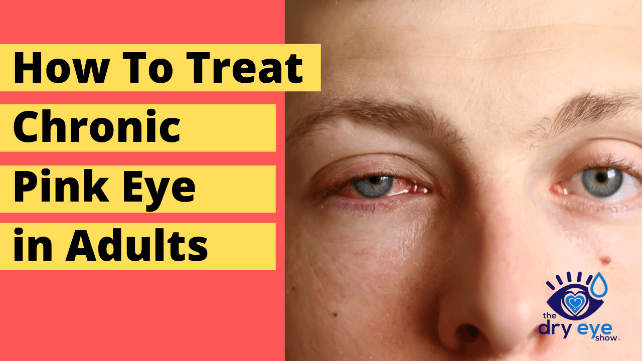 How To Treat Chronic Pink Eye in Adults | What Causes Chronic Pink Eye?