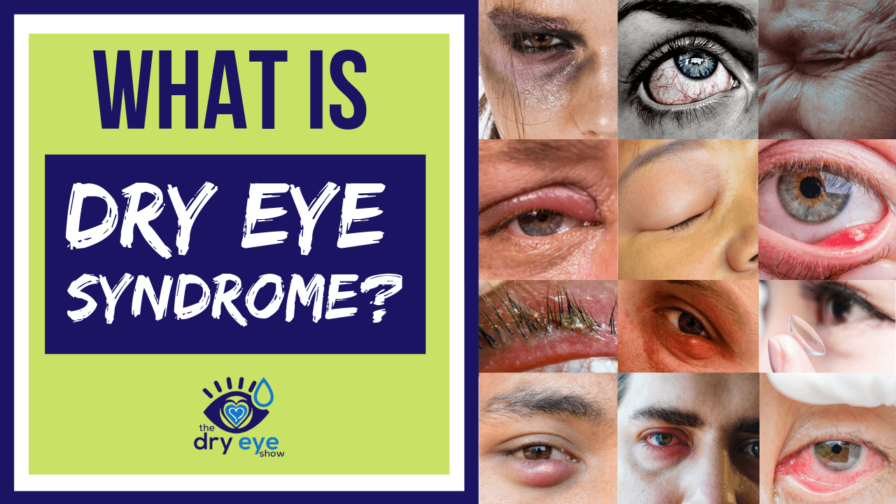 What Is Dry Eye Syndrome? Can Dry Eyes Cause Blurry Vision?