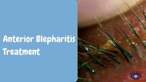 Anterior Blepharitis Treatment