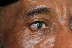Glaucoma -- How It Affects Everyday Life
