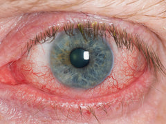 What Are Symptoms Of Dry Eye Disease?