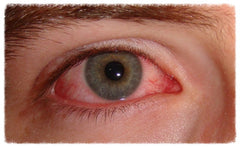 Treating Dry Eye Associated with Sjögren's Syndrome