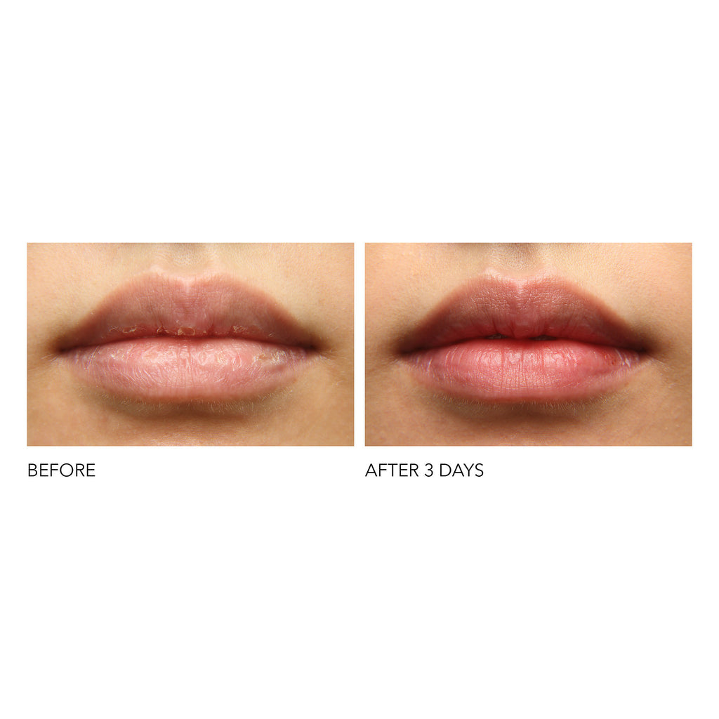 hyaluronic marine collagen lip cushion || dr. dennis gross
