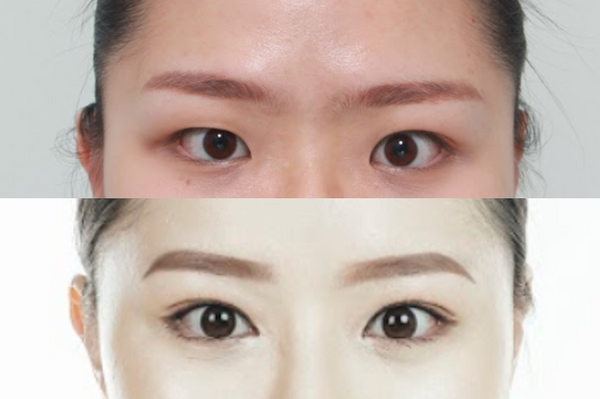 The Complete Guide to Korean Double Eyelid Surgery