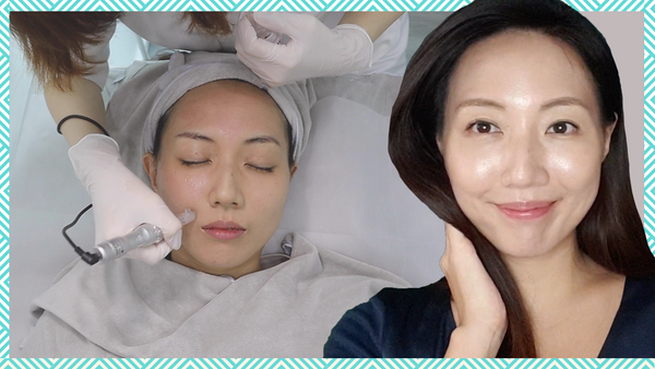 I Tried the NCTF Filorga Microneedling Treatment in Singapore