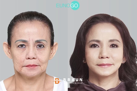 Jessica Iskandar and Mom: Mrs Woen's Korean Anti-Aging Makeover Story