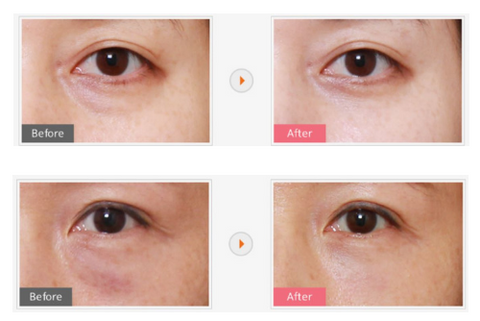 All you need to know about eyebags removal surgery in Korea