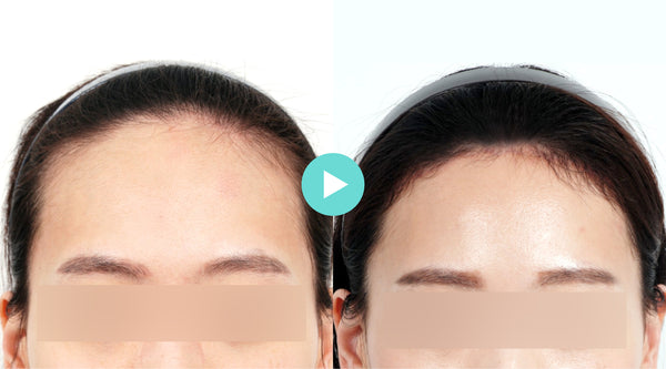 Everything You Need to Know About Forehead Reduction Surgery