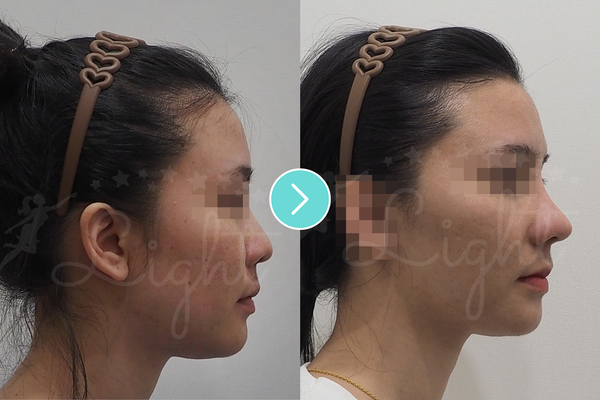 What is Korean Mesh Rhinoplasty? Advantages, Side Effects, Results and Many More