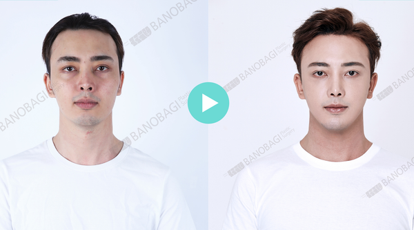 Non-Incisional Hair Transplant? Check Out Artas Robotic Method