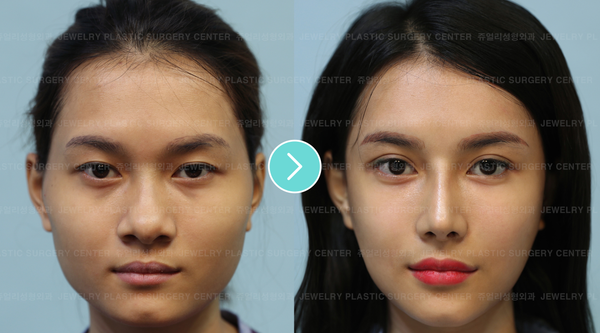 Is Facial Contouring Surgery Right for You? Advice from a Korean Plastic Surgeon