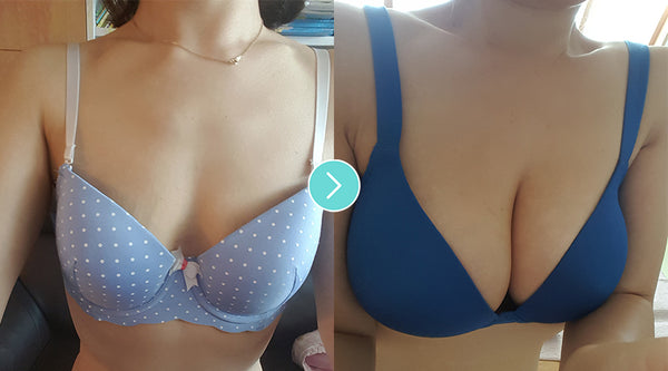 Breast Augmentation Surgery For Saggy Breasts?