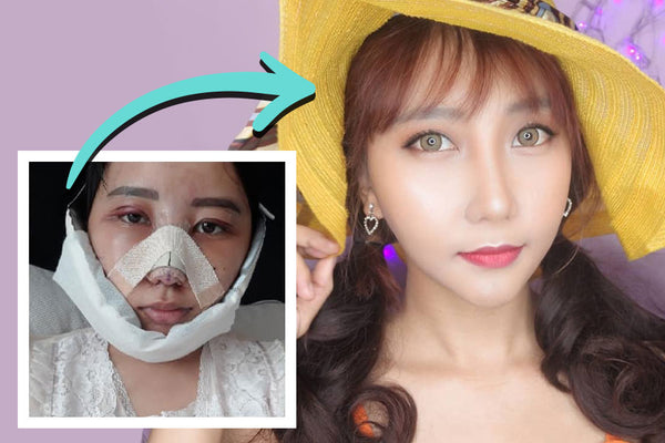 Tika's Cosmetic Surgery Makeover in Korea