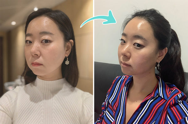 My First Non-Surgical Facelift Experience in Korea: Micro-needling RF Treatment, Aqua Peel and Laser Toning
