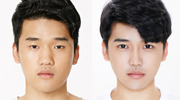Plastic Surgery for Men: The Latest Trends in Korea