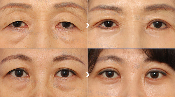 All About Blepharoplasty (Eye Lift): The Most Commonly Done Anti-Aging Plastic Surgery