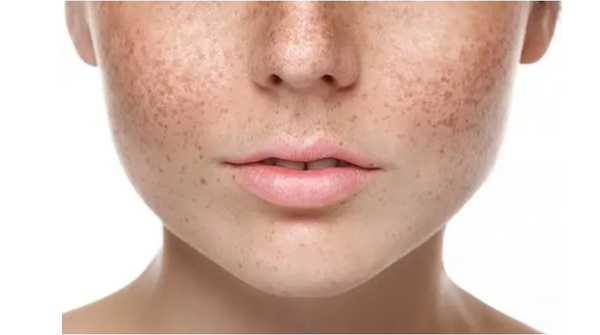 Laser Treatments for Freckles and Blemishes