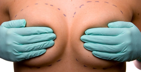 breast implant in seoul
