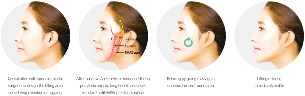 What is Elasticum Thread Lift? Q&A with Dr. Kim Jiyeon in ...