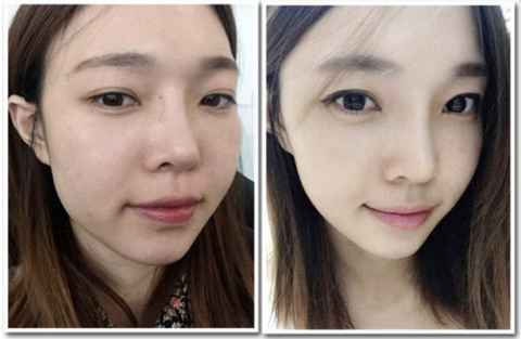 baby face injection korea