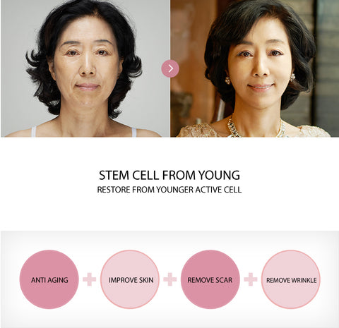stem cell therapies korea