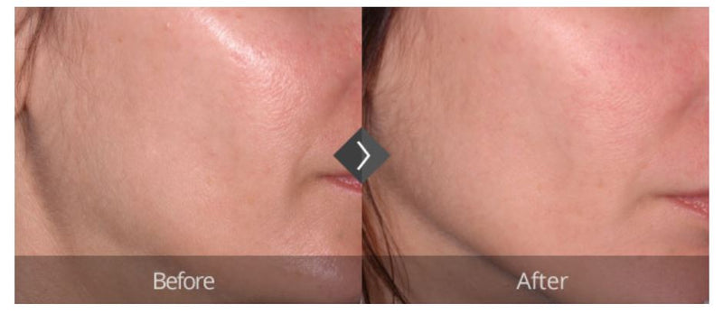 Ultherapy Face Lift - Eunogo Shop