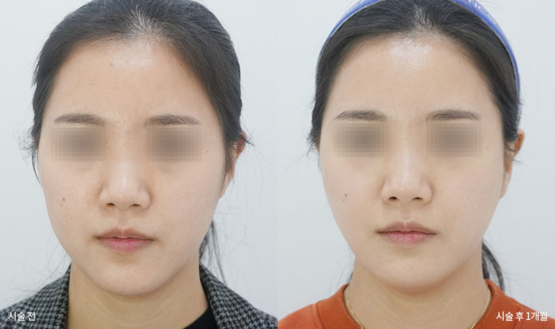Stem Cell (Exosome) Skin Booster & Aura Laser Face Lift