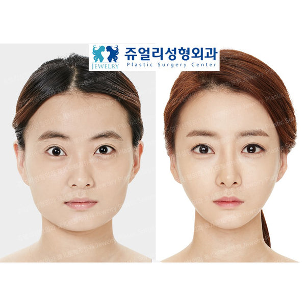 Face Contouring Surgery - Eunogo Shop