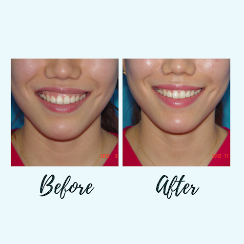 Gummy Smile Botox - Eunogo Shop
