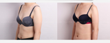 Ultra Z Liposculpting - Eunogo Shop