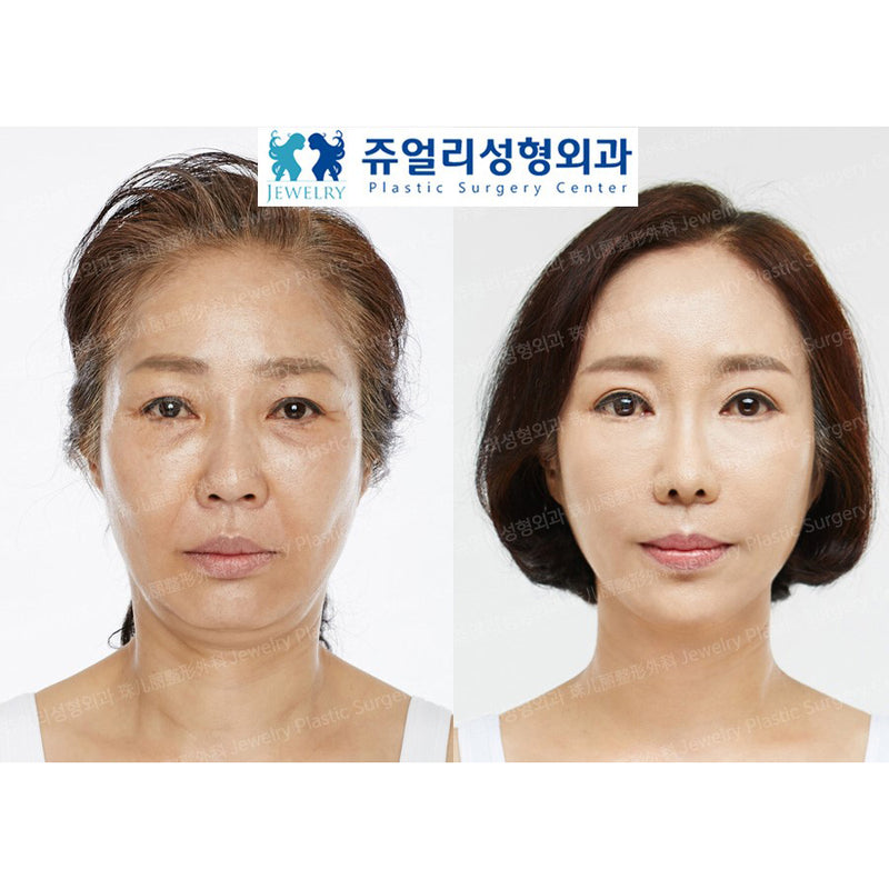 Mini V-line Facelift Surgery - Eunogo Shop