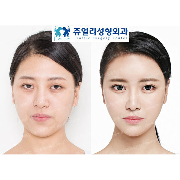 Botox & Skin Whitening Treatment - Eunogo Shop