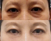 Under Eye Fat Repositioning Surgery