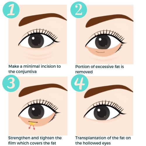 Eye Bag Removal - Under Eye Fat Repositioning Surgery - Eunogo Shop