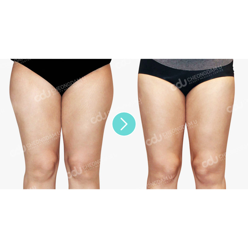 One-Day Slimming & Cellulite Program - Eunogo Shop