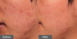 Acne Laser Treatment - DermaAkne - Eunogo Shop