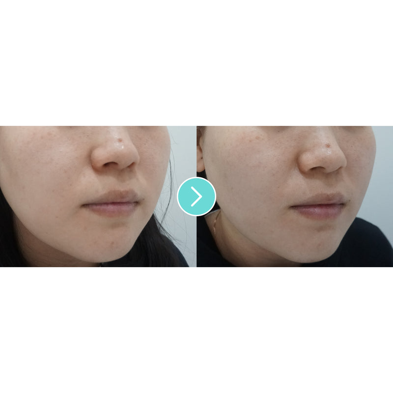 Shurink Laser, Non Invasive Face Lift - Eunogo Shop