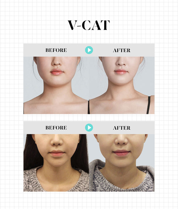 V-CAT Injection - Non-Invasive V-line Injection - Eunogo Shop