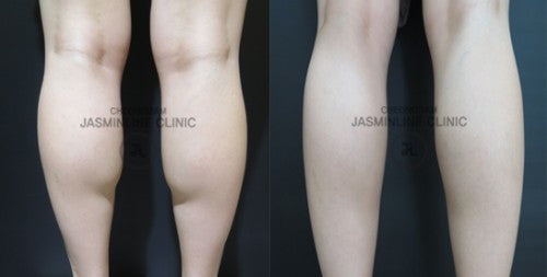 Red-Fat Injection - Non-Surgical Calves Slimming Treatment - Eunogo Shop