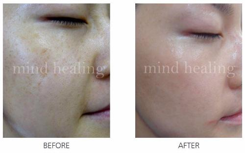 Intensive Whitening Therapy