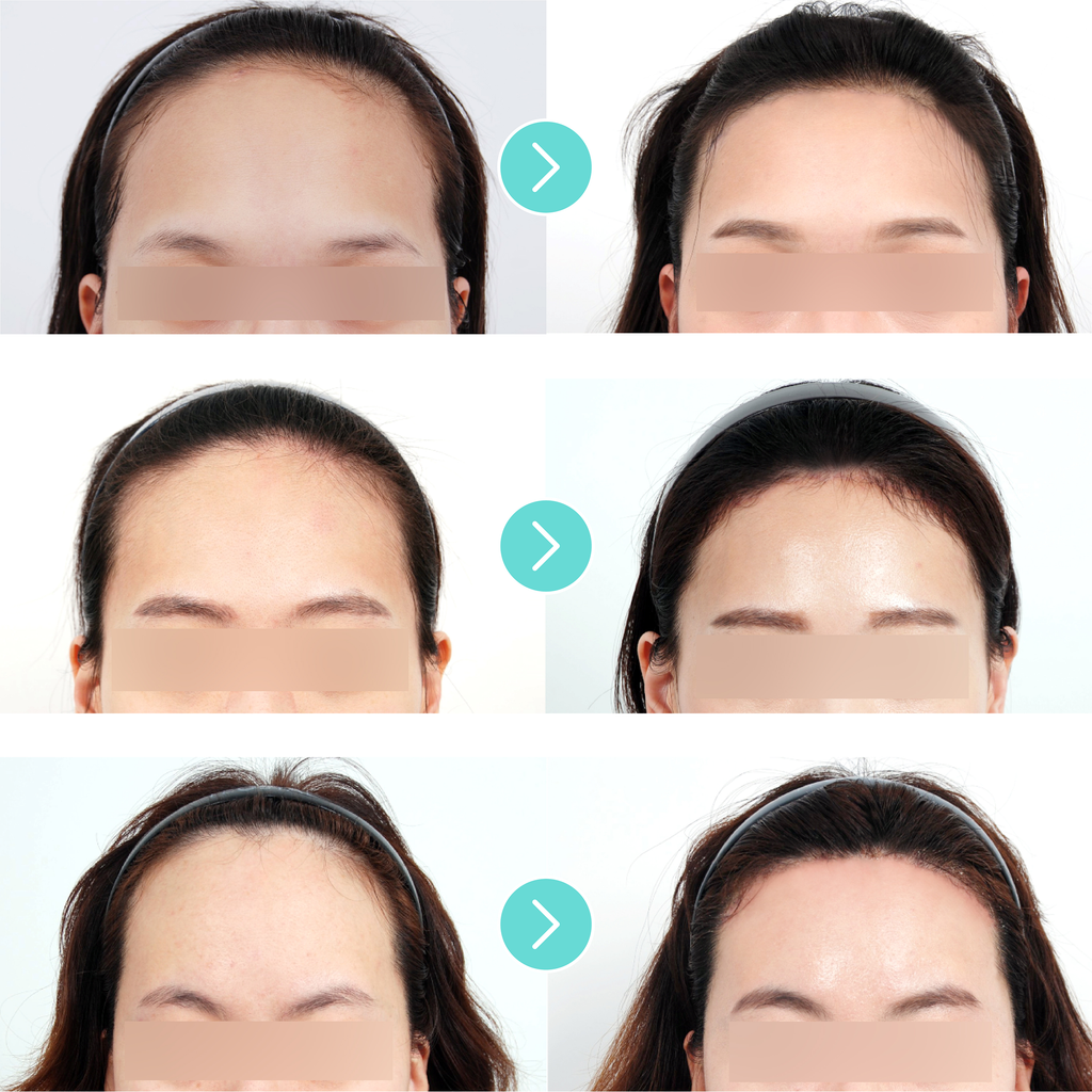 Forehead Reduction Surgery The Best Of Beauty In Seoul Korea By