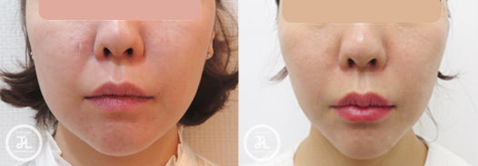 Red-Fat Injection & Botox - Double Chin & Cheeks - Eunogo Shop