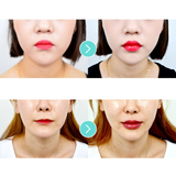 Lip Filler & Lip Corner Lift - Eunogo Shop