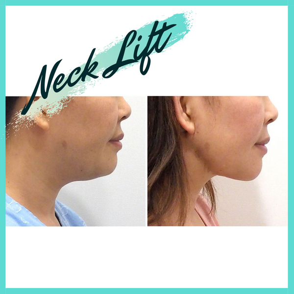 Elasticum Thread Neck Lift - Eunogo Shop